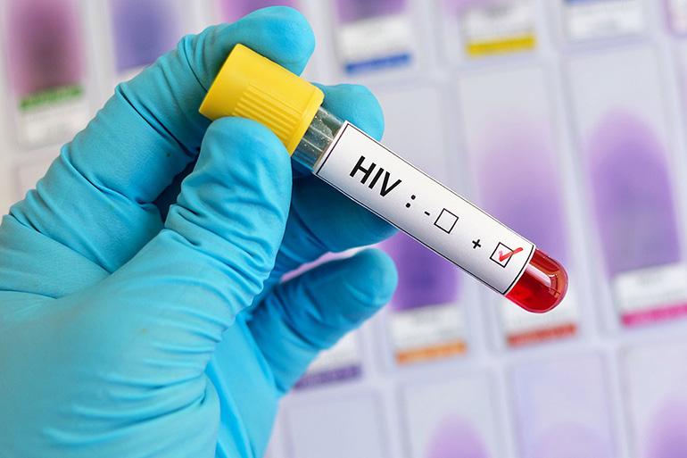 ВИЧ-инфицированные